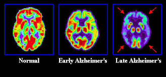 A Vision Of A Future Free Of Alzheimer's